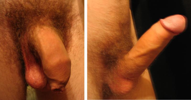 human penis erect