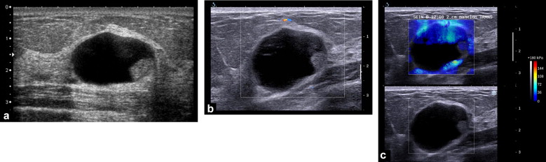 echoes breast with internal lesions