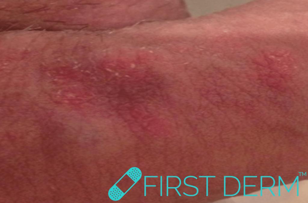 red sex rash after