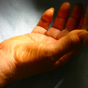 basal thumb syndrome