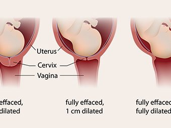 before is vagina shaved the labor