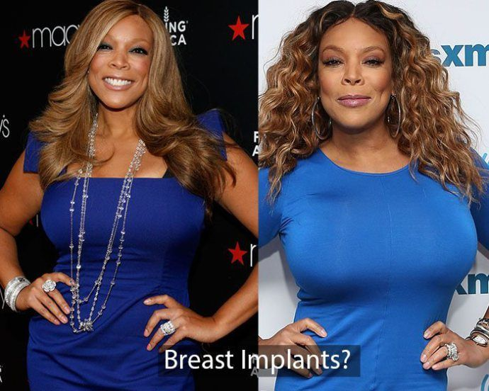 wendy williams before boobs