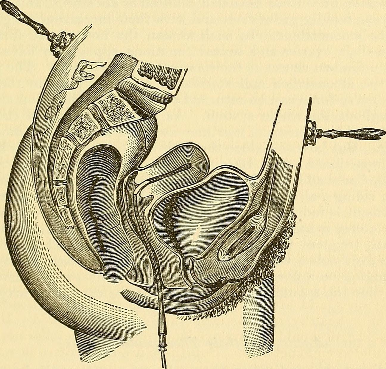 mof vagina parts of fil